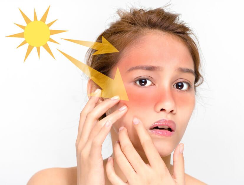 紫外線を浴びると皮脂が多く分泌される