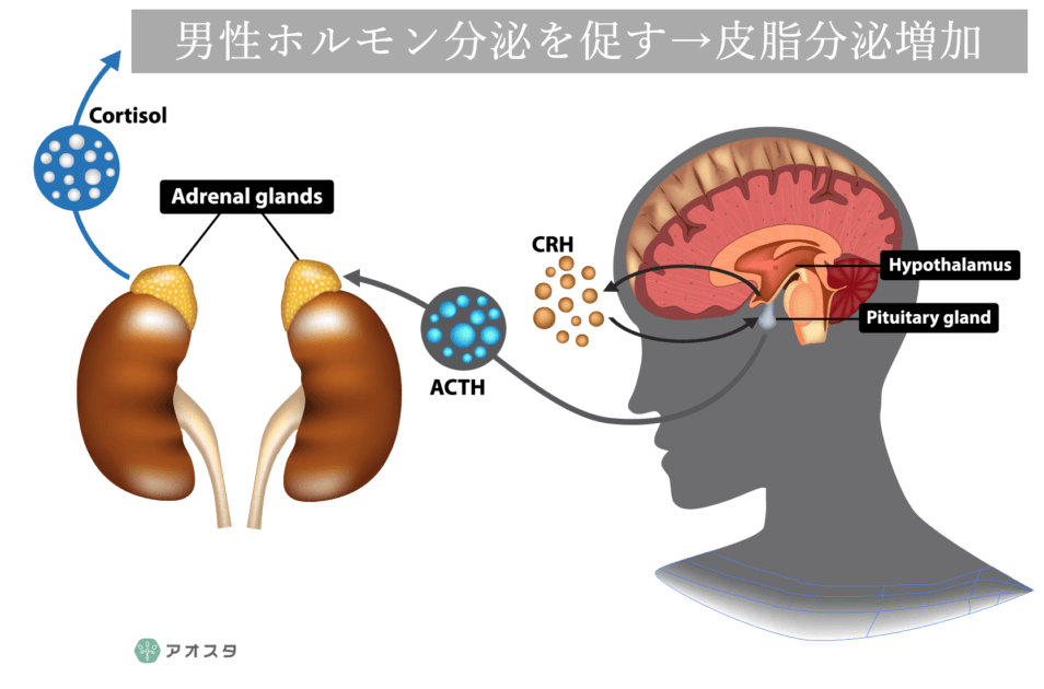 ストレスは皮脂分泌を促し、ニキビの原因になる