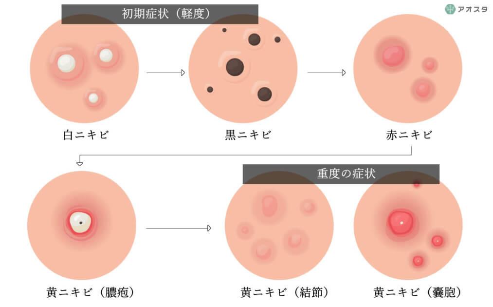 ニキビのステージ別図